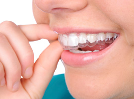 Invisalign - Clear Braces