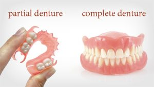 Full and Partial Denture
