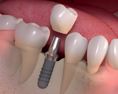 Affordable Tooth Implant
