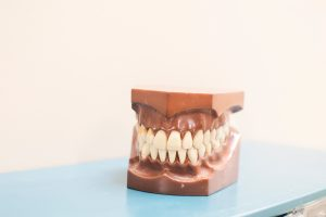 dental crowns in philadelphia