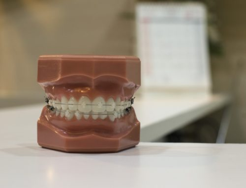 Your Options for Replacing Missing or Damaged Teeth