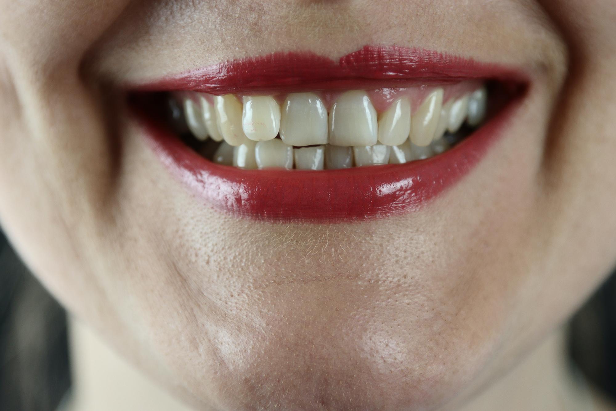 dentist in Bensalem, PA