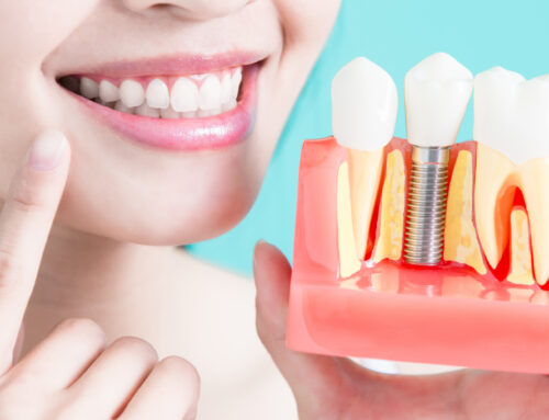 What are Dental Implants and How Can They Better Your Smile?