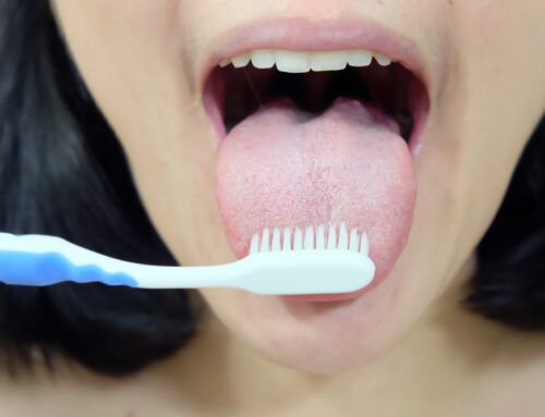 Do You Need to Brush Your Tongue and the Roof of Your Mouth?