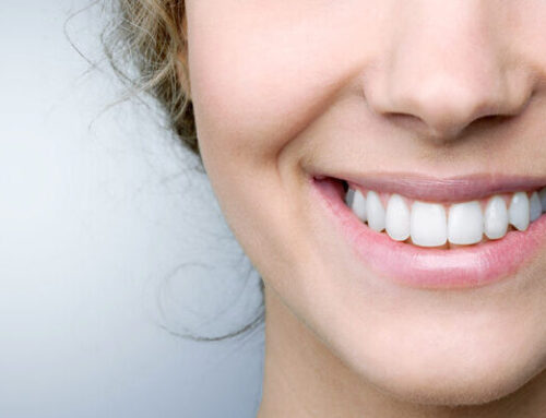 What are Craze Lines and are They a Dental Emergency?
